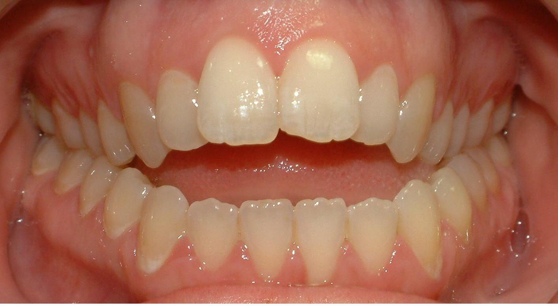 домашнее отбеливание зубов с капами zoom
