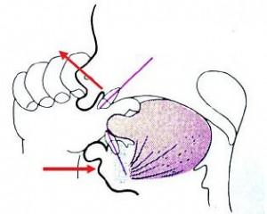 Сосание пальца приводит к открытому прикусу. Стреклами показаны векторы давления.