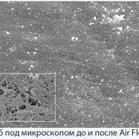 Гигиеническая чистка зубов Air Flow: что это такое?
