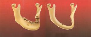 Костная пластика челюстей в стоматологии при имплантации зубов