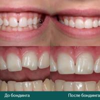 Зубные мостики цена