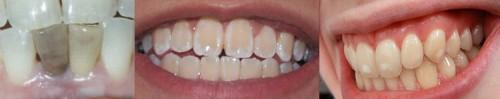 Изменение цвета зубов – причины и лечение желтизны и пятен на зубах