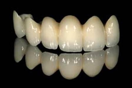 Керамический зубной мост. Керамический мостовидный протез.