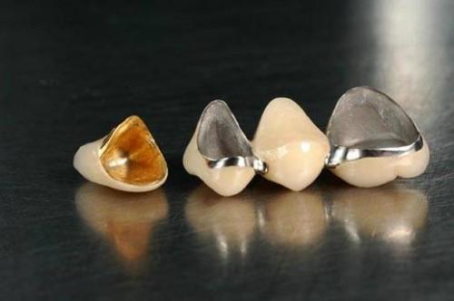 Металлический зубной мост. Металлический мостовидный протез.