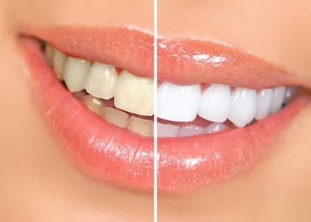 Неотразимая улыбка: факторы и компоненты дизайна улыбки