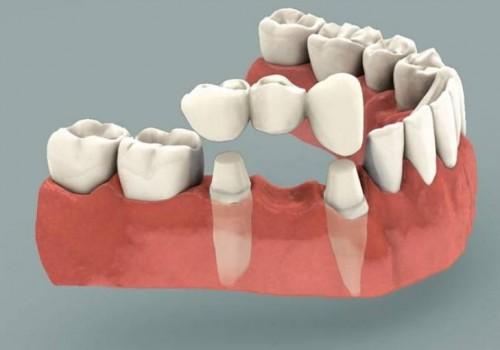 Зубной мост. Мостовидный протез.