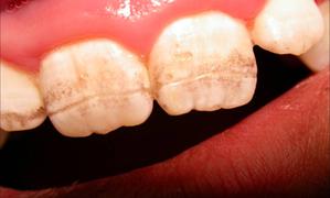 Наследственные стоматологические заболевания