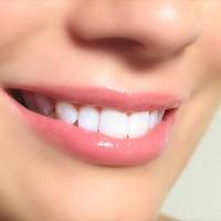Домашнее отбеливание зубов опасно?