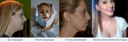 Лечение открытого прикуса: до и поле операции, и после ношения брекетов