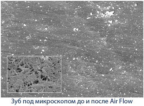 Зуб под микроскопом до и после чистки зубов Air Flow