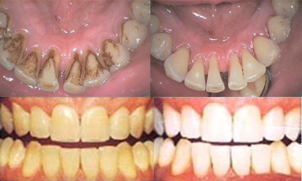 Фото до и после чистки зубов Air Flow